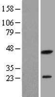 NBL1-15012 - PXMP2 Lysate