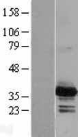NBL1-15018 - PYCR2 Lysate