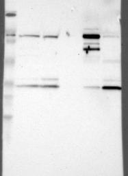 NBP1-86147 - Glycogen phosphorylase liver form