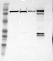 NBP1-86182 - Glycogen phosphorylase liver form