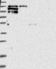 NBP1-91228 - FAK2 / PTK2B