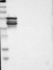 NBP1-87192 - PTH Receptor 1