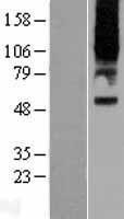NBL1-14947 - Parathyroid Hormone Receptor 2 Lysate