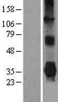 NBL1-14105 - Parkin Lysate