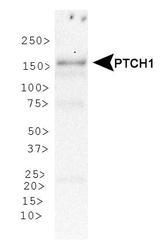 NBP1-71662 - PTCH1
