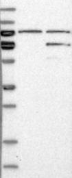 NBP1-87960 - ETV4 / PEA3
