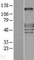 NBL1-14825 - Peripherin Lysate