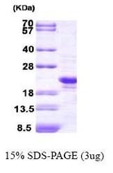 NBC1-25855 - Peroxiredoxin-2 / PRDX2