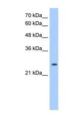 NBP1-55159 - Peroxiredoxin-6 / PRDX6