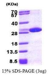 NBP1-30188 - Peroxiredoxin-6 / PRDX6
