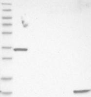NBP1-85543 - Phospholamban