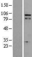 NBL1-14474 - Phospholipase A2, group IVA Lysate