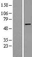 NBL1-14638 - Phosphoribosyl Pyrophosphate Amidotransferase Lysate