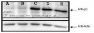 NBP1-78034 - RPS6KA1