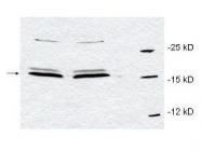 NBP1-77757 - CDK9