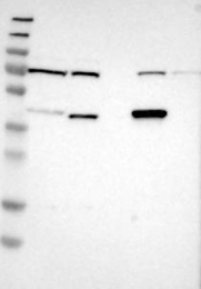 NBP1-89580 - Sarcosine oxidase
