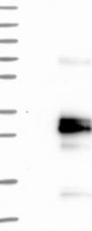 NBP1-89781 - Glycodelin / PAEP