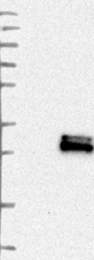 NBP1-89782 - Glycodelin / PAEP