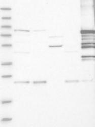 NBP1-90042 - Plakophilin 1 / PKP1