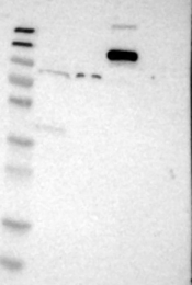 NBP1-86078 - Plakophilin-2