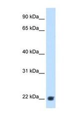 NBP1-58978 - KLKB1 / Kininogen