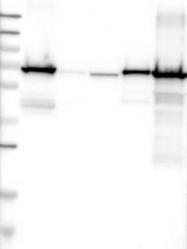 NBP1-88057 - Plastin 2 / LCP1