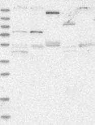 NBP1-89620 - Plexin B2