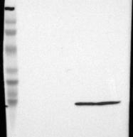 NBP1-89649 - Transthyretin / Prealbumin