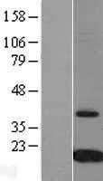 NBL1-17423 - Prealbumin Lysate