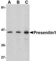NBP1-76792 - Presenilin-1
