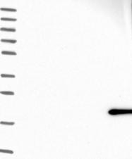 NBP1-92287 - PACAP