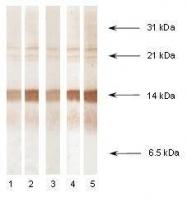 NB110-13042 - Procalcitonin