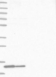 NBP1-87426 - Profilin 2 (PFN2)