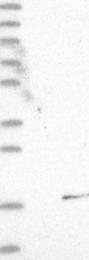 NBP1-90983 - Profilin-4 (PFN4)