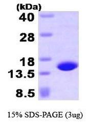 NBP1-41134 - Profilin-4 (PFN4)