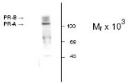 NB200-320 - Progesterone receptor