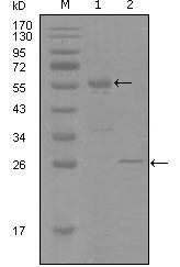 NBP1-51551 - Progesterone receptor