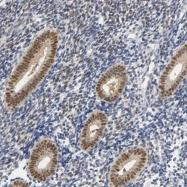 NBP1-87774 - Progesterone receptor