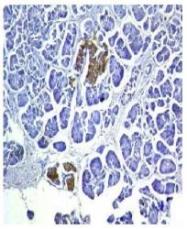 NBP1-50761 - Insulin
