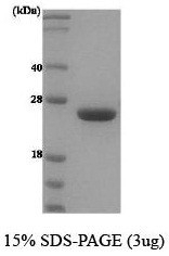 NBC1-18466 - Prolactin / PRL