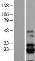 NBL1-14930 - Prostaglandin D Synthase (Lipocalin) Lysate