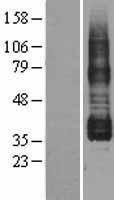 NBL1-14939 - Prostaglandin I2 Receptor Lysate