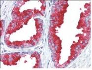 NBP1-50433 - ACPP /  Prostatic acid phosphatase