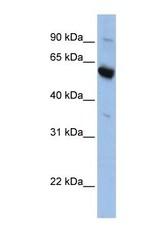 NBP1-69294 - SLC45A3