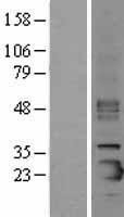 NBL1-15896 - Prosurfactant Protein C Lysate