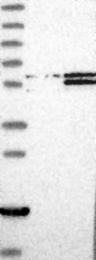 NBP1-90821 - PSMD4 / MCB1