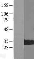 NBL1-14884 - Proteasome 20S LMP7 Lysate
