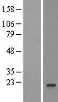 NBL1-14878 - Proteasome 20S beta 3 Lysate