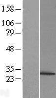 NBL1-14881 - Proteasome 20S beta 6 Lysate