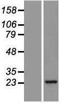 NBL1-14877 - Proteasome 20S beta2 Lysate